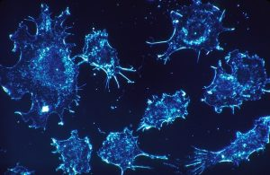 קנביס רפואי לטיפול בסרטן הכבד